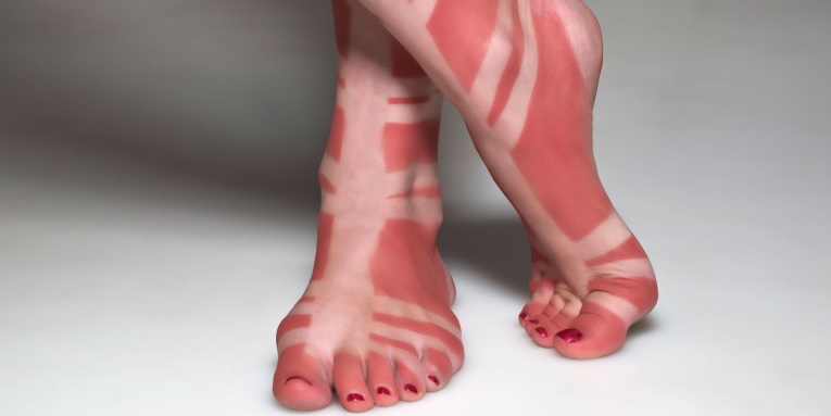 image of sunburn and white sandal straps on skin of feet and ankles